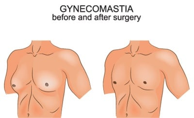 gynecomastia-before-and-after-surgery-1.jpg