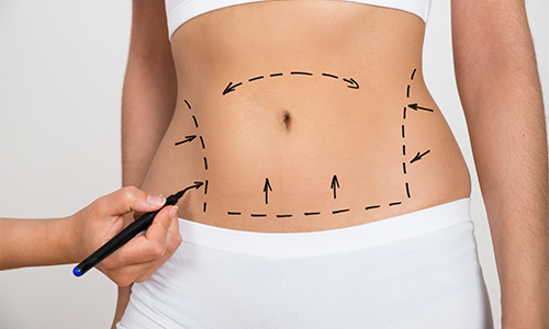 Belly-fat-removal-prep